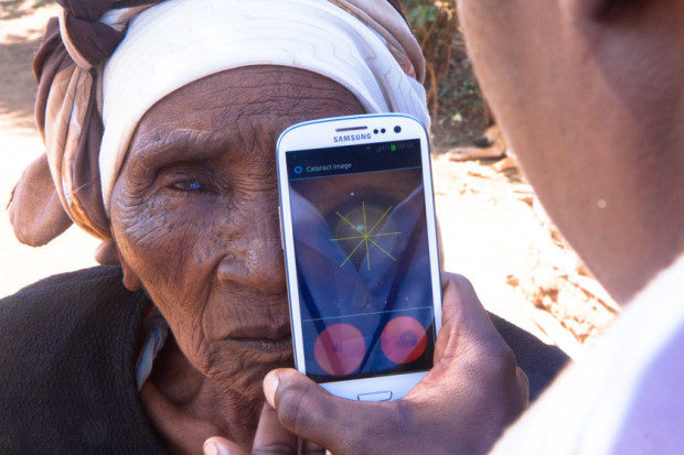 cataract-testing-outside-patients-home_3-c382c2a9-peek-620x413-7198386